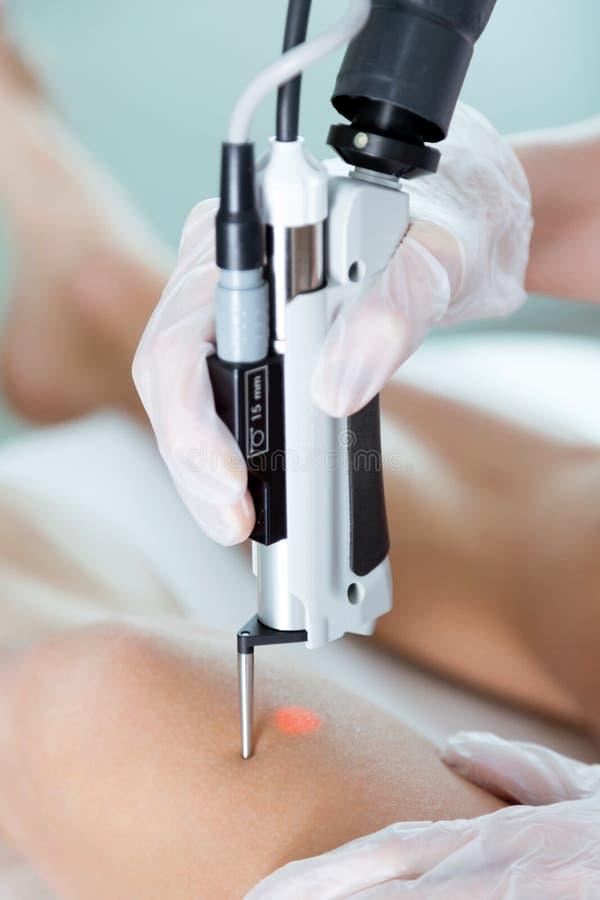 El ` s del cosmetólogo da la eliminación del pelo de las piernas con un laser a su cliente en el salón de belleza foto de archivo libre de regalías