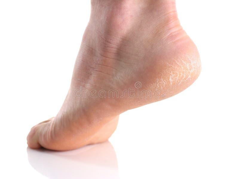 El talón del pie con la mala piel cubierta con las grietas foto de archivo