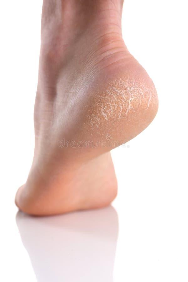 El talón del pie con la mala piel cubierta con las grietas fotografía de archivo