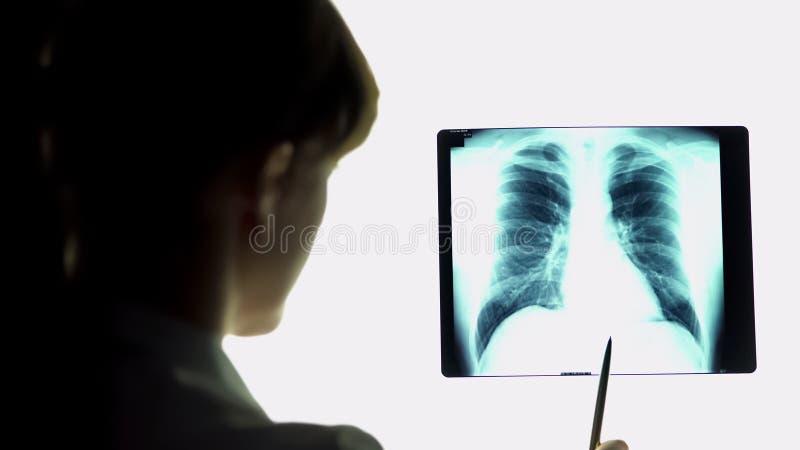 El terapeuta que analiza los pulmones de la pulmonía radiografía la imagen, haciendo conclusiones, atención sanitaria imagenes de archivo