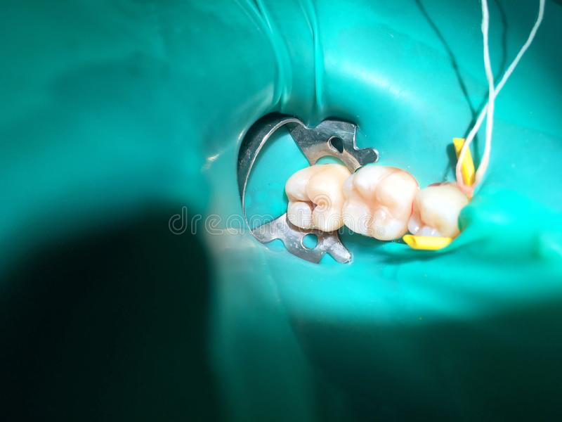 El tratamiento pulpotomy o de la endodoncia parcial en la muela t del ` s del niño imagenes de archivo