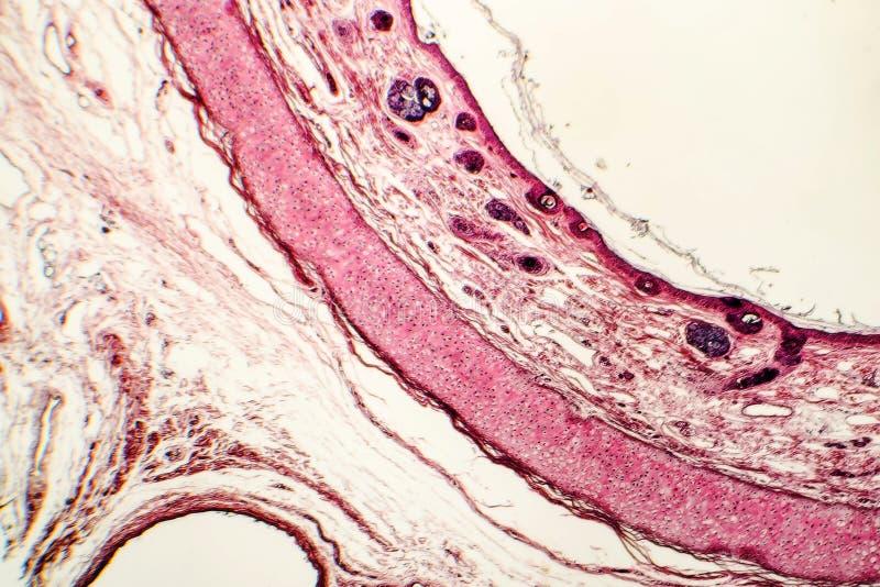 Elastic cartilage of human outer ear stock photos