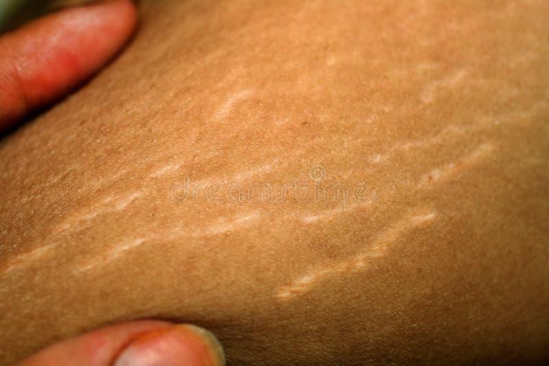 Elasticitetsfläckar på huden Ärr på kroppen Elasticitetsfläckar på ben Cellulite arkivbilder