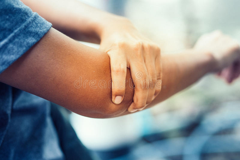 Elbow bone fracture. Female having pain in injured arm stock photos