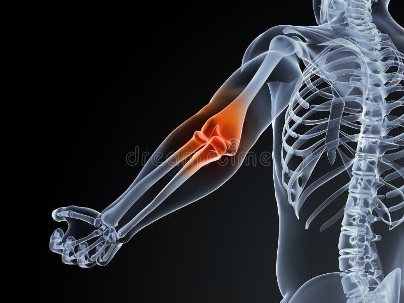 Elbow bursitis stock illustration
