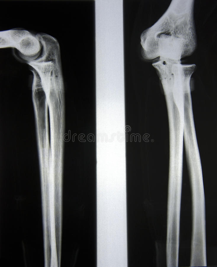 Download Elbow and Forearm stock image. Image of proximal, radiography - 22068699