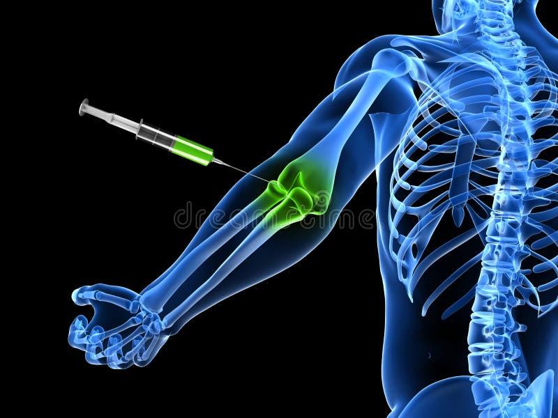 Elbow joint injection stock illustration. Illustration of black ...