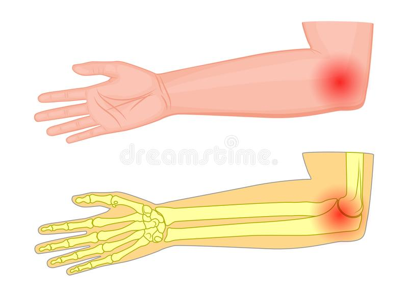 Elbow joint pain_Medial view. Vector illustration of a human elbow joint with a pain or injury. Medial view. For advertising, medical publications. EPS 10 stock illustration