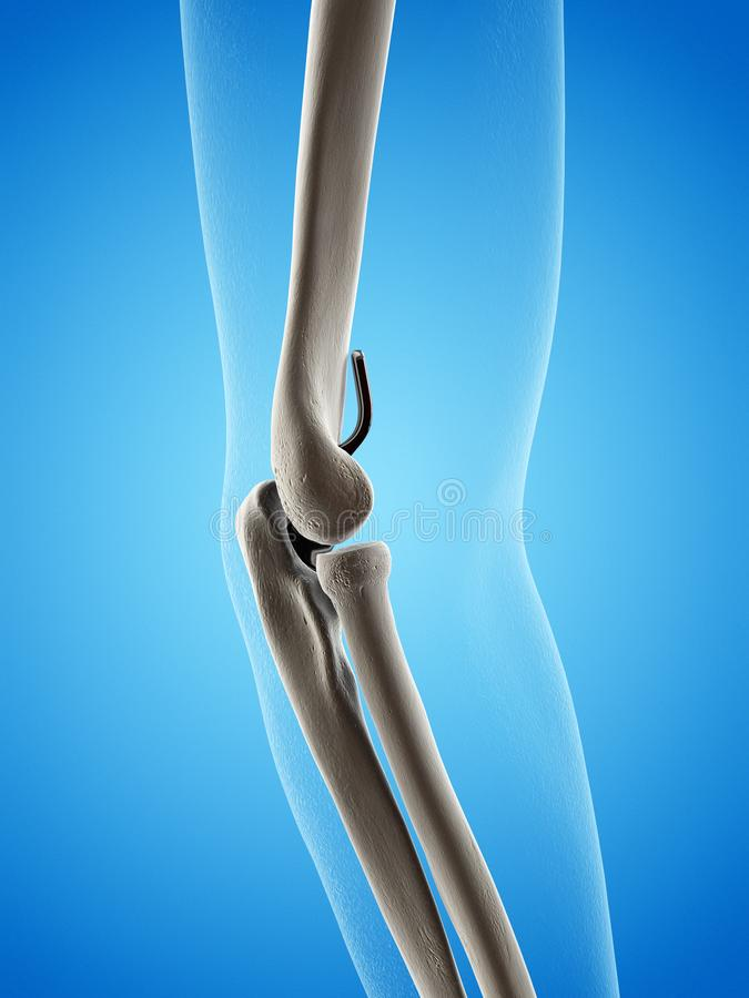 An elbow replacement. 3d rendered medically accurate illustration of an elbow replacement stock illustration