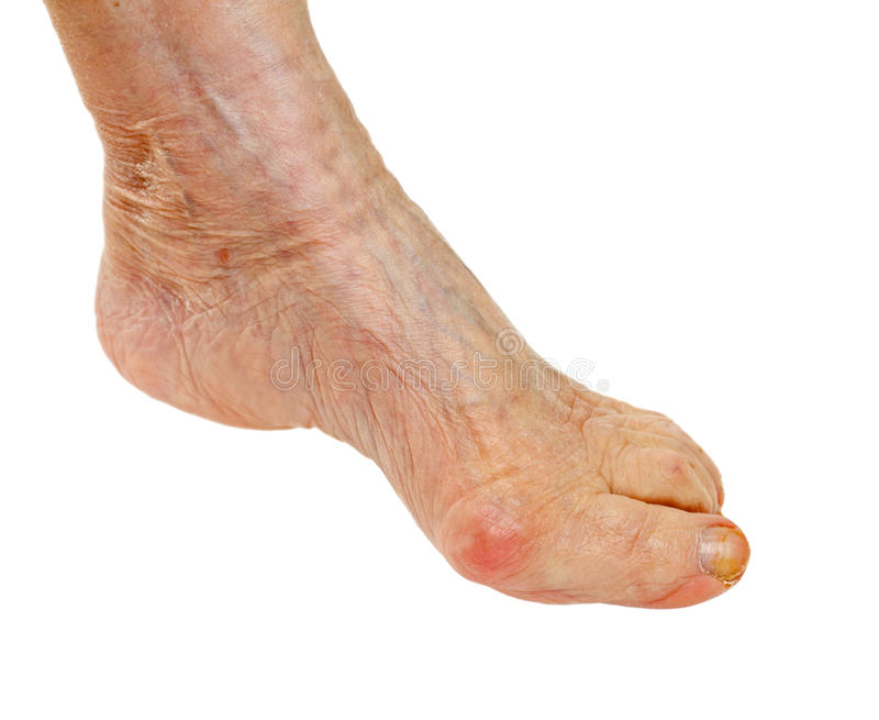 Download Elderly feet stock photo. Image of contusion, injured - 39503064