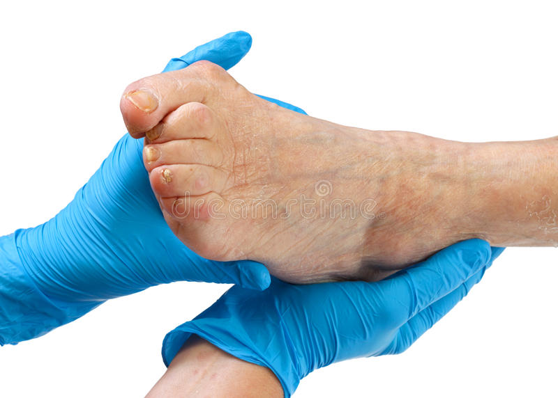 Elderly feet. Picture of a nurse hand holding an elderly feet royalty free stock images