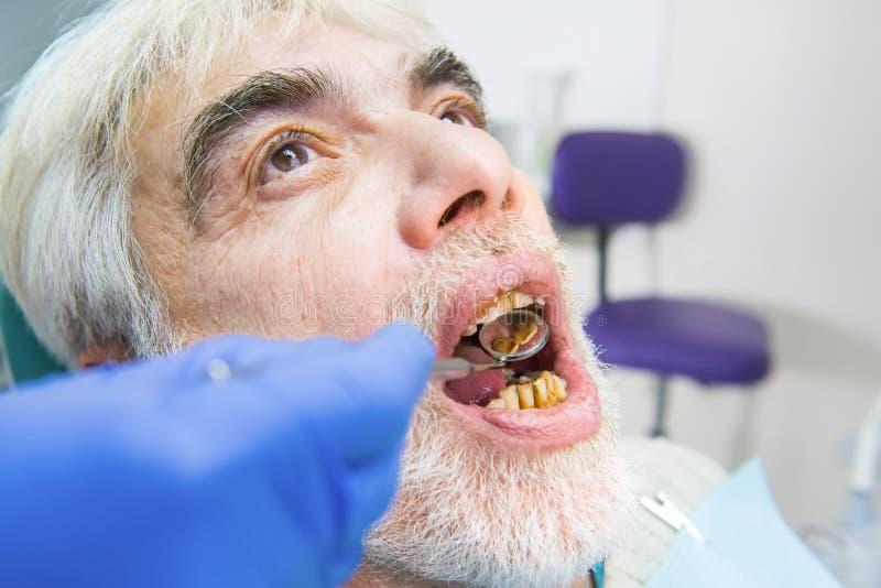 Elderly man with bad teeth. Elderly men with bad teeth. Hand is holding dental mirror royalty free stock photo
