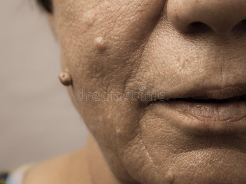 Elderly pensioner female, dermal fibroma closeup. royalty free stock images