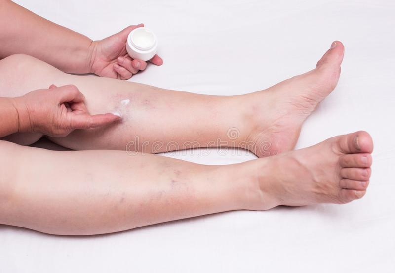 Elderly woman applies healing ointment on legs with thrombosis and varicose veins, white background, phlebeurysm thrombophlebitis royalty free stock photos