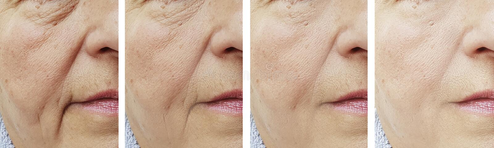 Elderly woman face wrinkles before  after treatment stock photo