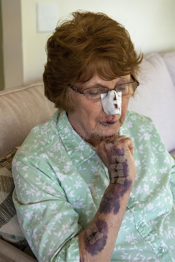 Elderly Woman Fall, Fell, Accident royalty free stock photo