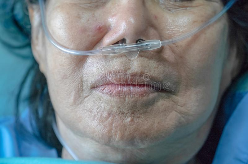 Elderly woman with nasal breathing tube stock photo