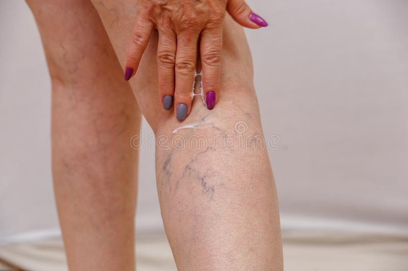 An elderly woman smears cream on her legs on a light isolated background. Concept for medicine and cosmetology. royalty free stock photography