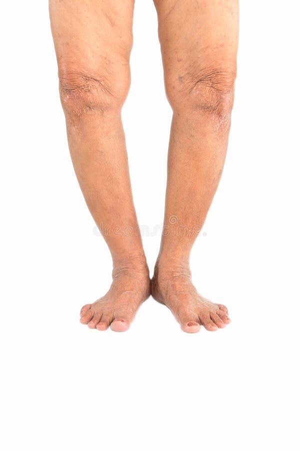 Elderly woman Varus deformity or bow legs royalty free stock photography