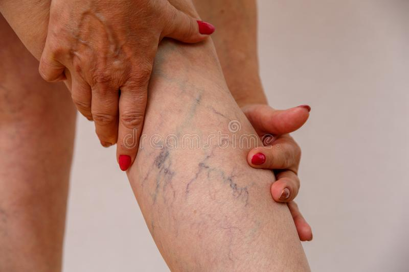 An elderly woman in white panties is touching her legs with cellulite and varicose veins on a light isolated background. An elderly woman in white panties is royalty free stock photography