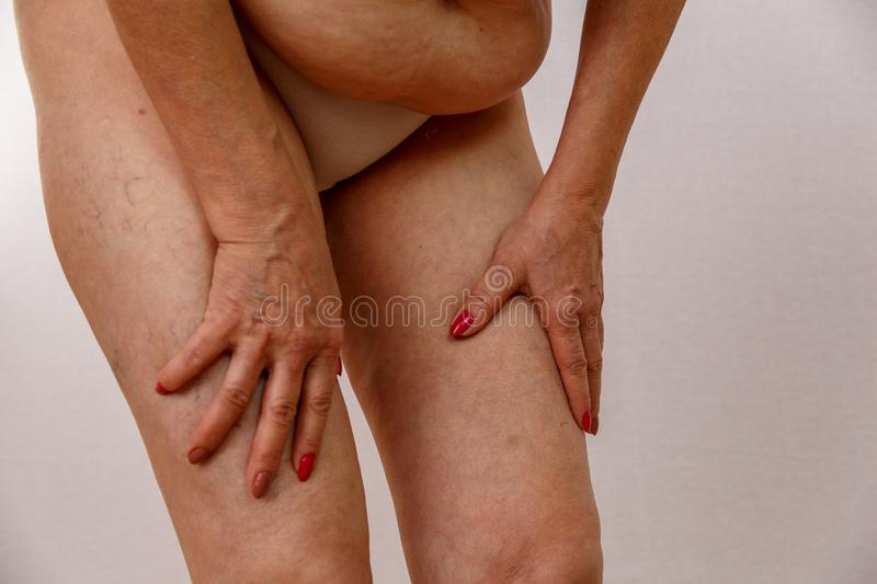 An elderly woman in white panties is touching her legs with cellulite and varicose veins on a light isolated background. royalty free stock photo
