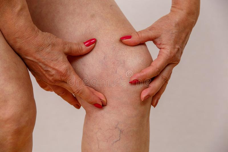 An elderly woman in white panties is touching her legs with cellulite and varicose veins on a light isolated background. An elderly woman in white panties is stock photography