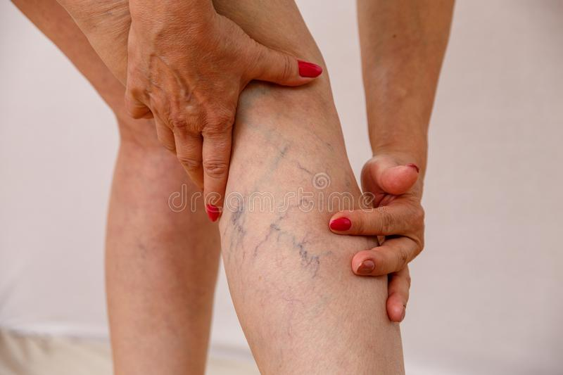 An elderly woman in white panties is touching her legs with cellulite and varicose veins on a light isolated background. An elderly woman in white panties is stock photos