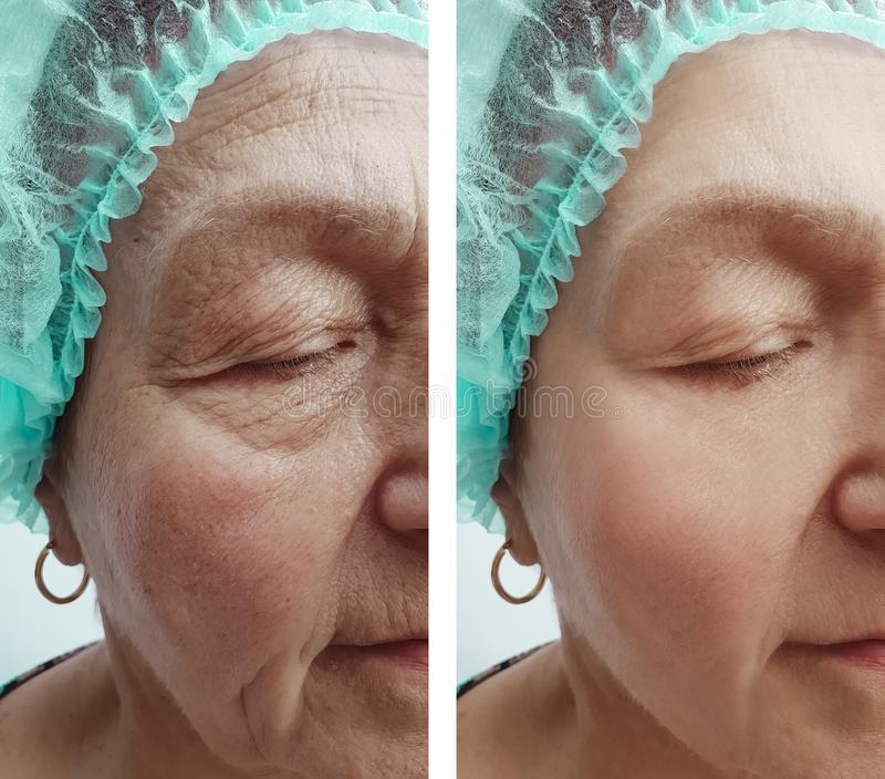 Elderly woman wrinkles removal dermatology correction face before and after procedures, effect. Elderly woman wrinkles face before and after procedures effect royalty free stock image