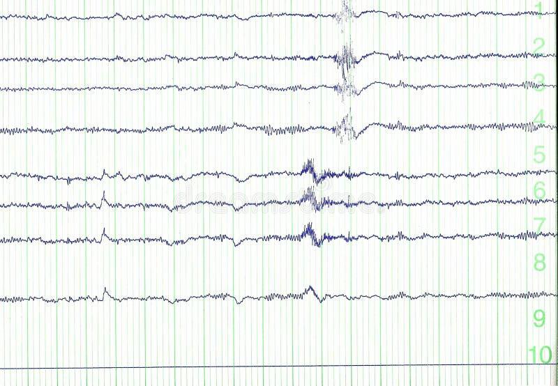 electro encephalogramme arkivfoton
