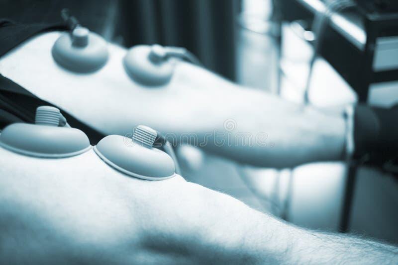 Electro tratamiento del dolor de la tensión de lesión del músculo del estímulo foto de archivo libre de regalías