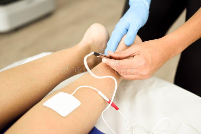 Electroacupuncture ξηρό με τη βελόνα στο θηλυκό αστράγαλο στοκ φωτογραφία