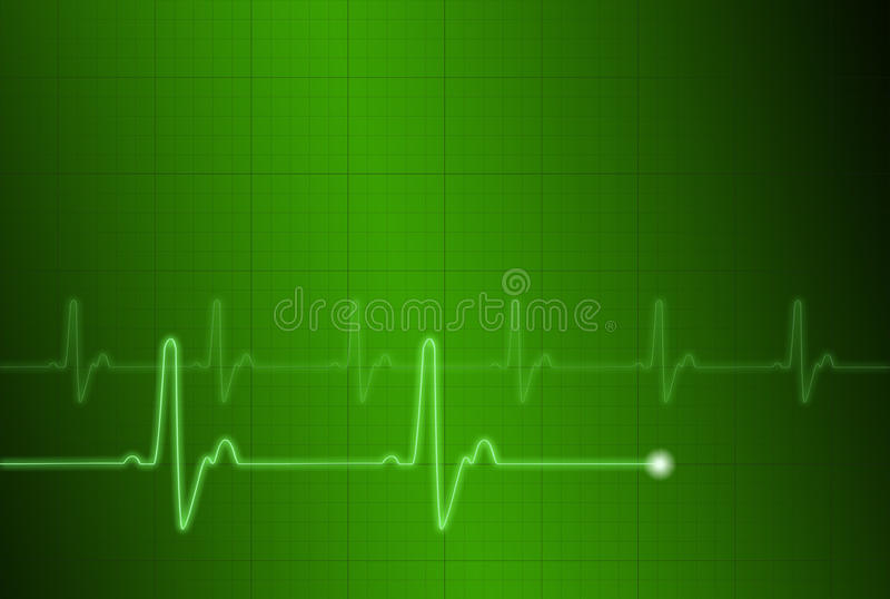 electrocardiogram 1 royalty-vrije illustratie