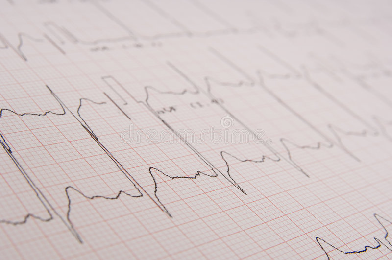 Download Electrocardiogram stock photo. Image of hospital, cardio - 1064492