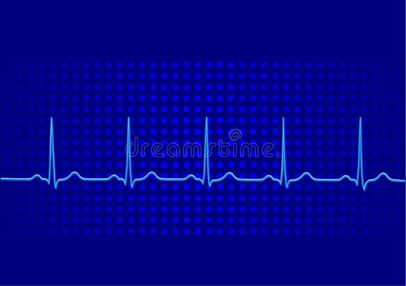 Download Electrocardiogram stock vector. Image of cardiogramme - 13479162
