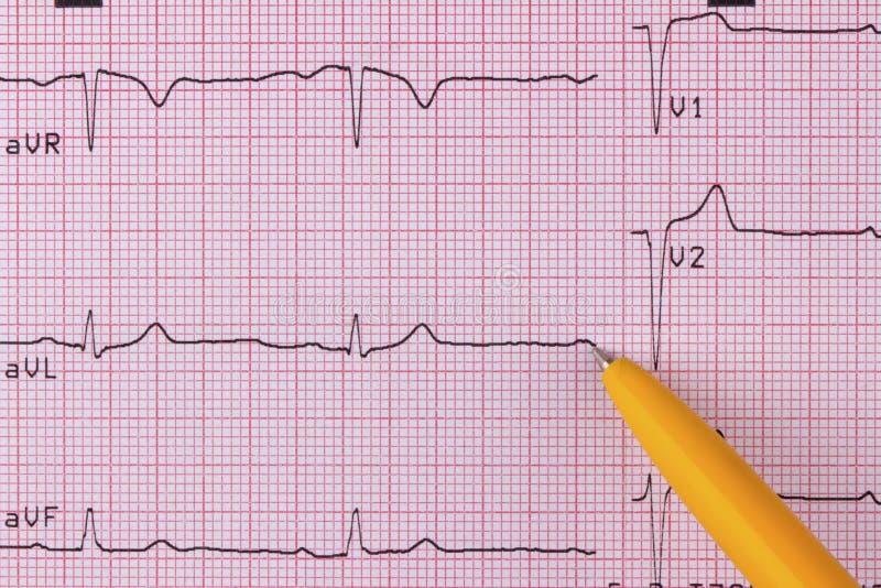 electrocardiogram ilustração stock