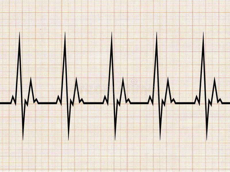 electrocardiogram royaltyfri illustrationer