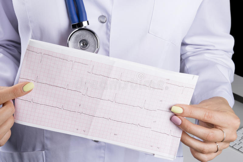 Electrocardiogram, ecg in hand of a female doctor. Medical health care. Clinic cardiology heart rhythm and pulse test closeup. Cardiogram printout stock photo