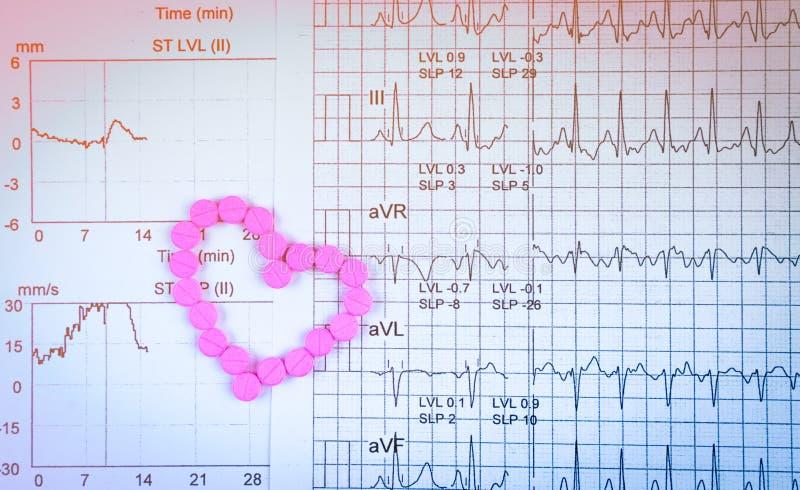 electrocardiogram of ECG-het rapportdocument van de Elektrocardiogramgrafiek EST-de Testresultaat van de Oefeningsspanning en roz stock fotografie