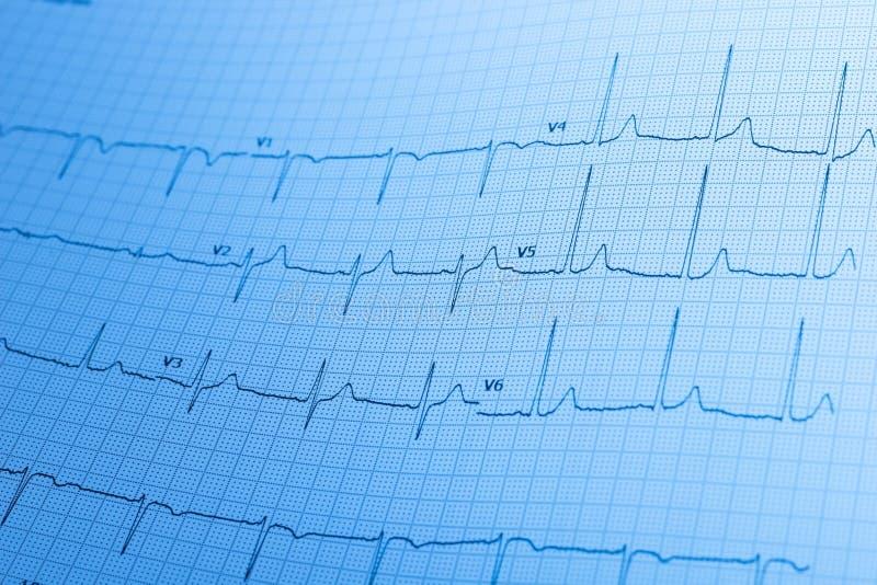 Electrocardiogram/ECG printed on graph paper. stock photos