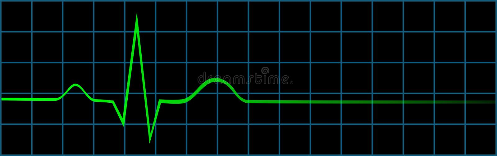 Electrocardiogram Showing Last Heart Beat stock illustration