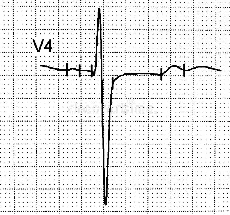 Electrocardiogram test that shows electrical activity of the heart royalty free stock photo