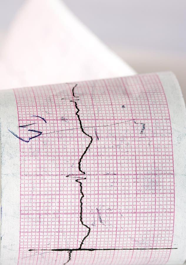 Electrocardiograma CTG imagenes de archivo