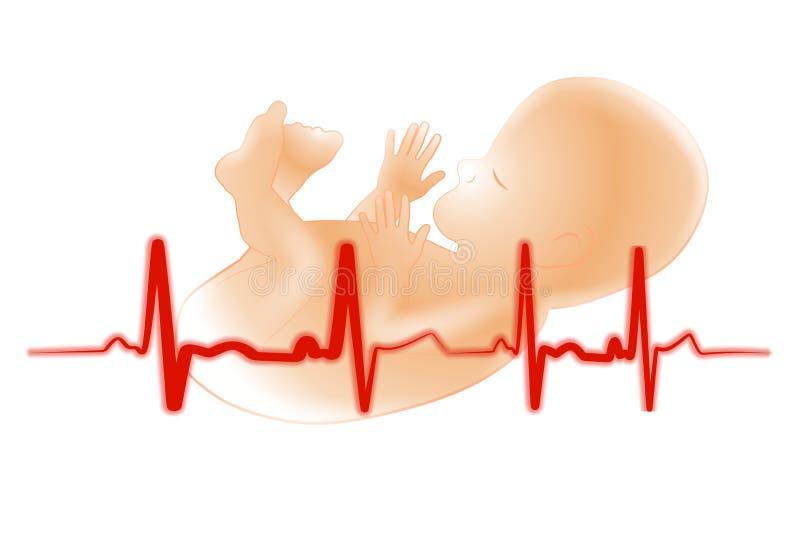 Electrocardiograma do feto do bebê prematuro ilustração royalty free