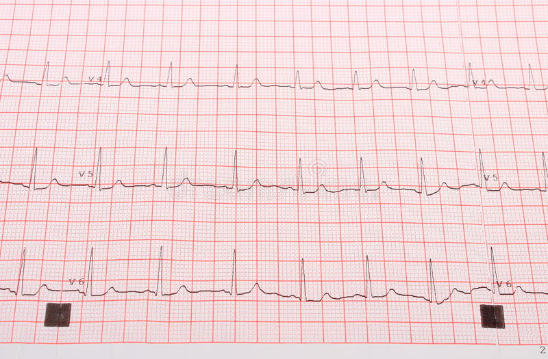 Electrocardiograma en la rejilla rosada foto de archivo