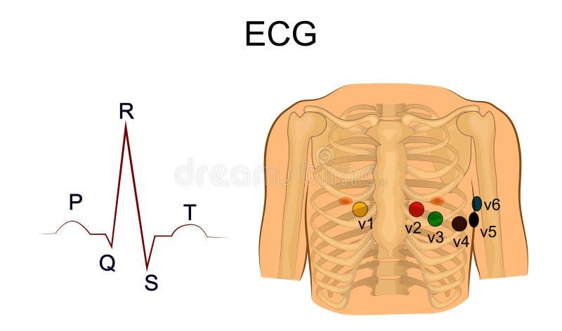 electrocardiograma Ventajas del pecho stock de ilustración