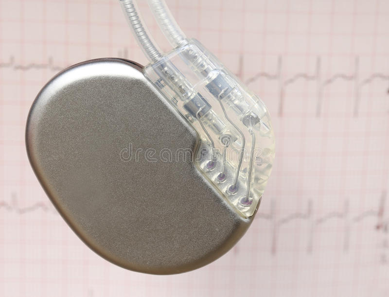 Electrocardiograph with pacemaker. Close up of Electrocardiograph with pacemaker royalty free stock photos