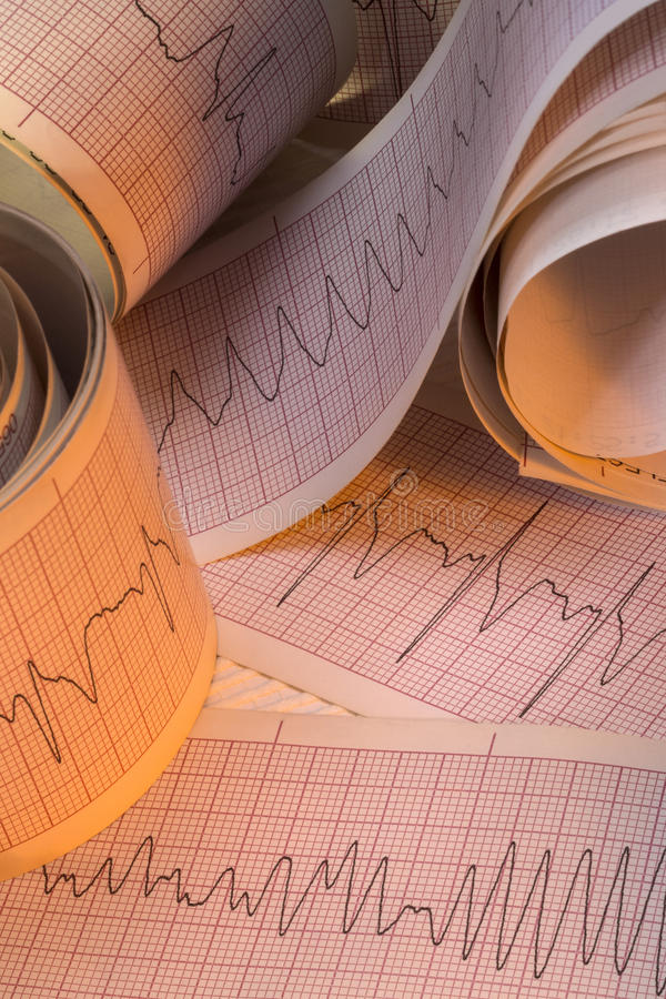 Electrocardiograph Test Results - Cardiac Arrhythmia stock photography