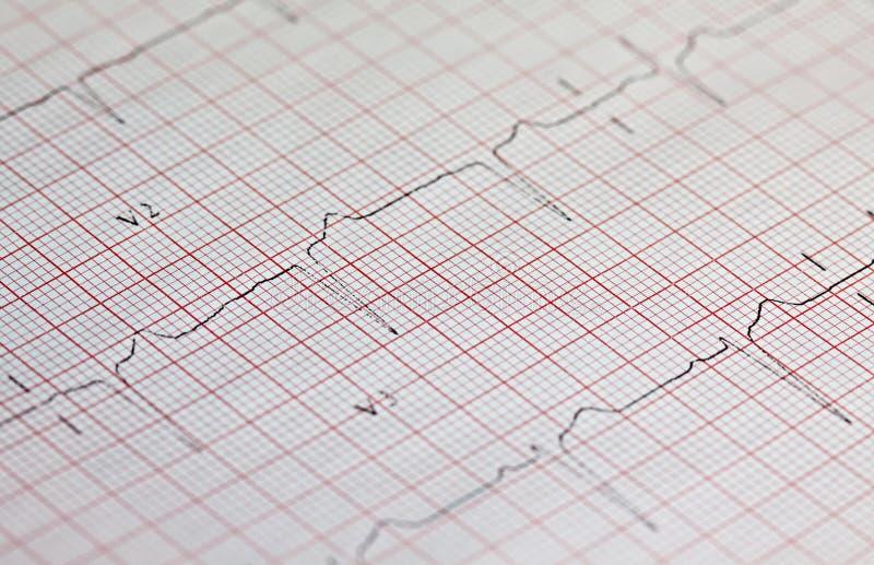 Elektrocardiogram stock foto's