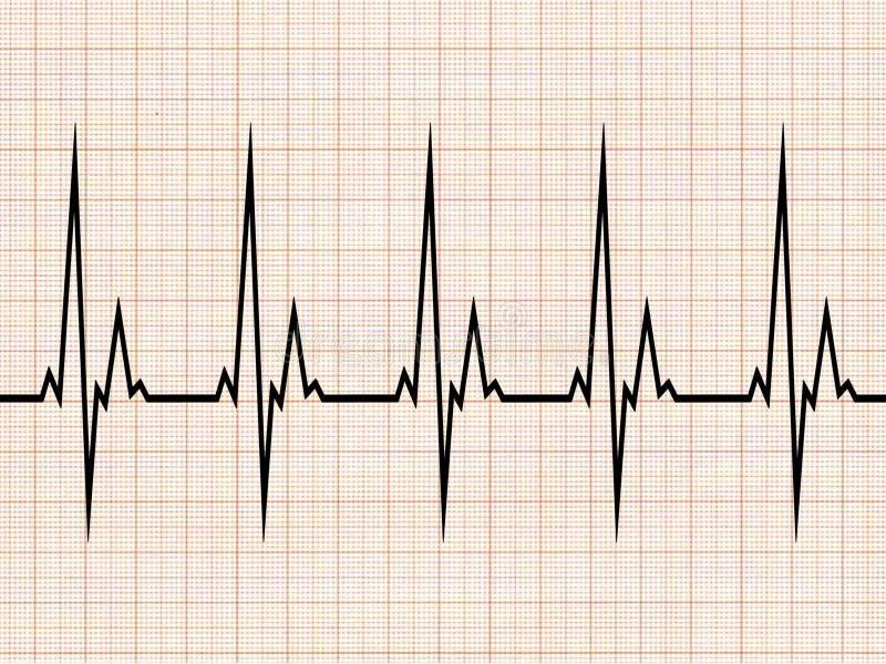 Elektrocardiogram royalty-vrije illustratie