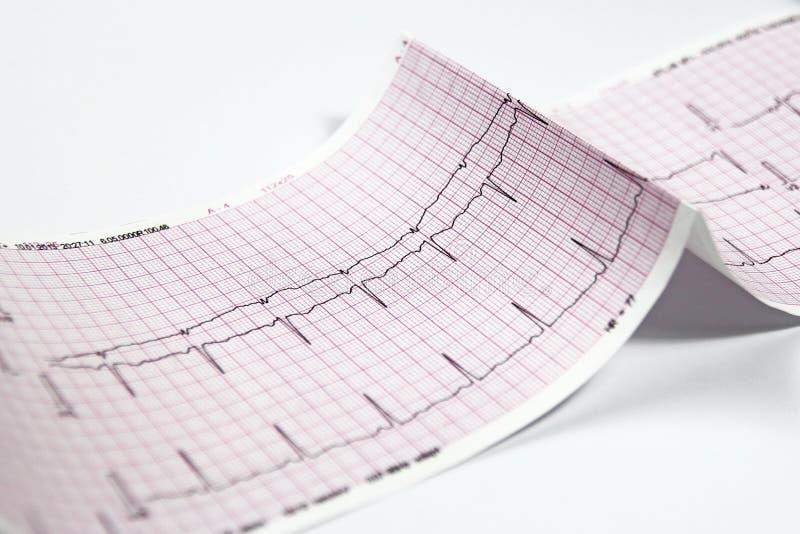Elektrocardiogram, de test van het hartelectrocardiogram royalty-vrije stock afbeelding
